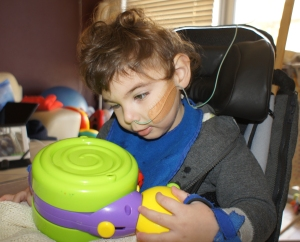 Nasal Feeding Tube